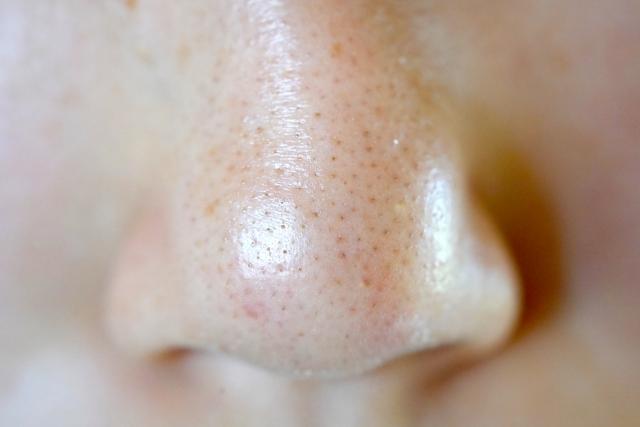 鼻 の 毛穴 の 汚れ 鼻の毛穴の黒いポツポツ汚れの原因と取り方4個[医師監修]