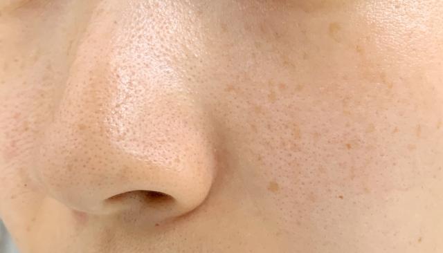頬の黒ずみ